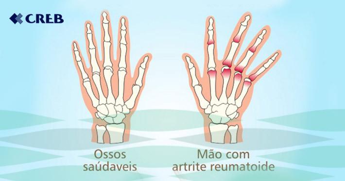 articulațiile degetelor doare decât să trateze ciuperci pentru dureri articulare